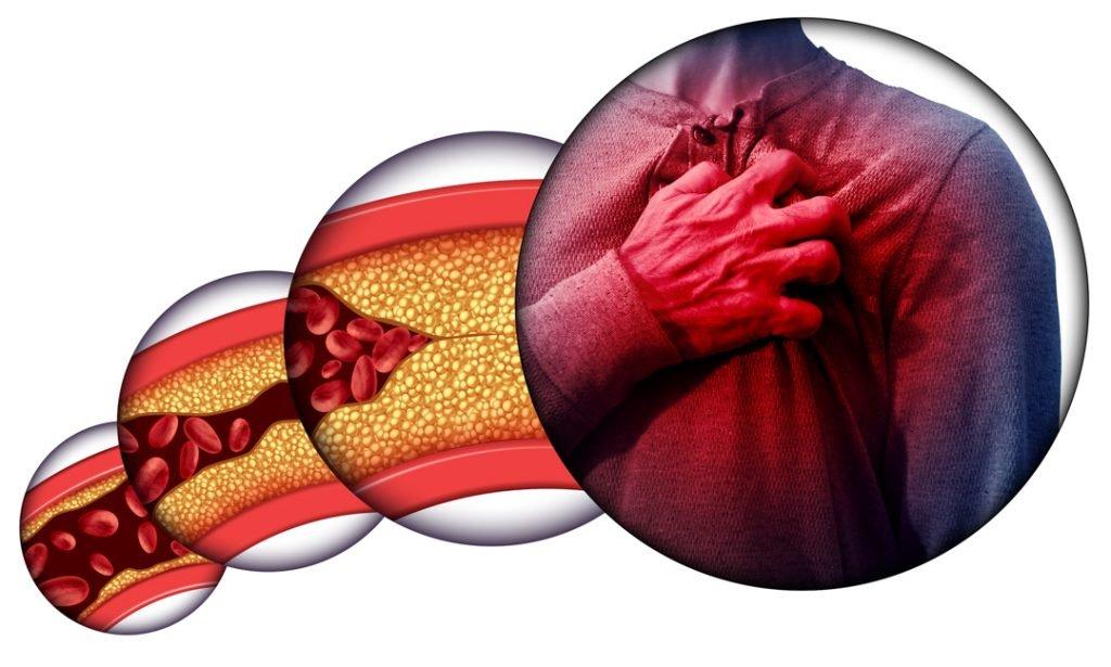 Mengenal Aterosklerosis, Penyumbatan Pembuluh Darah Penyebab Serangan Jantung