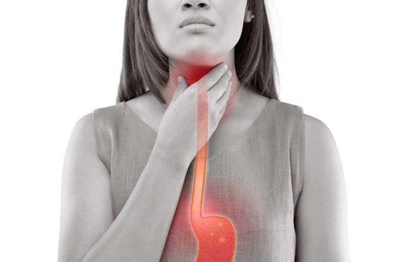 Mengenal Penyakit GERD (Gastroesophageal Reflux Disease)