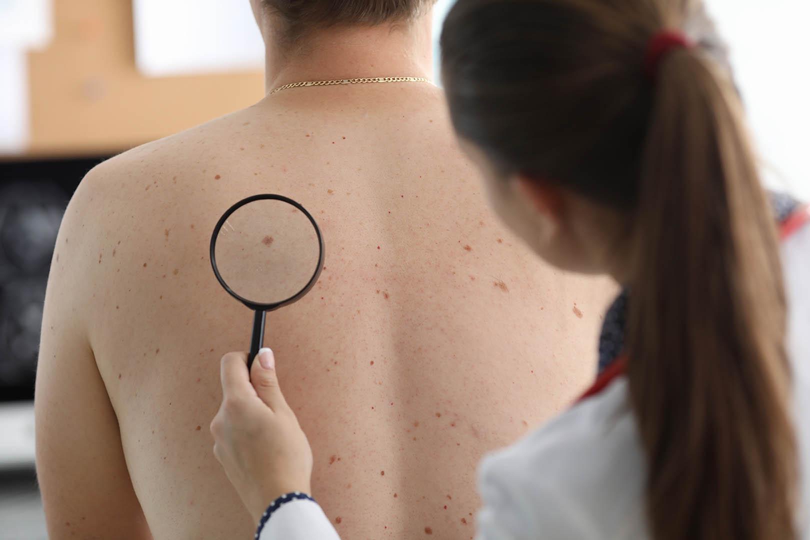 melanoma-adalah
