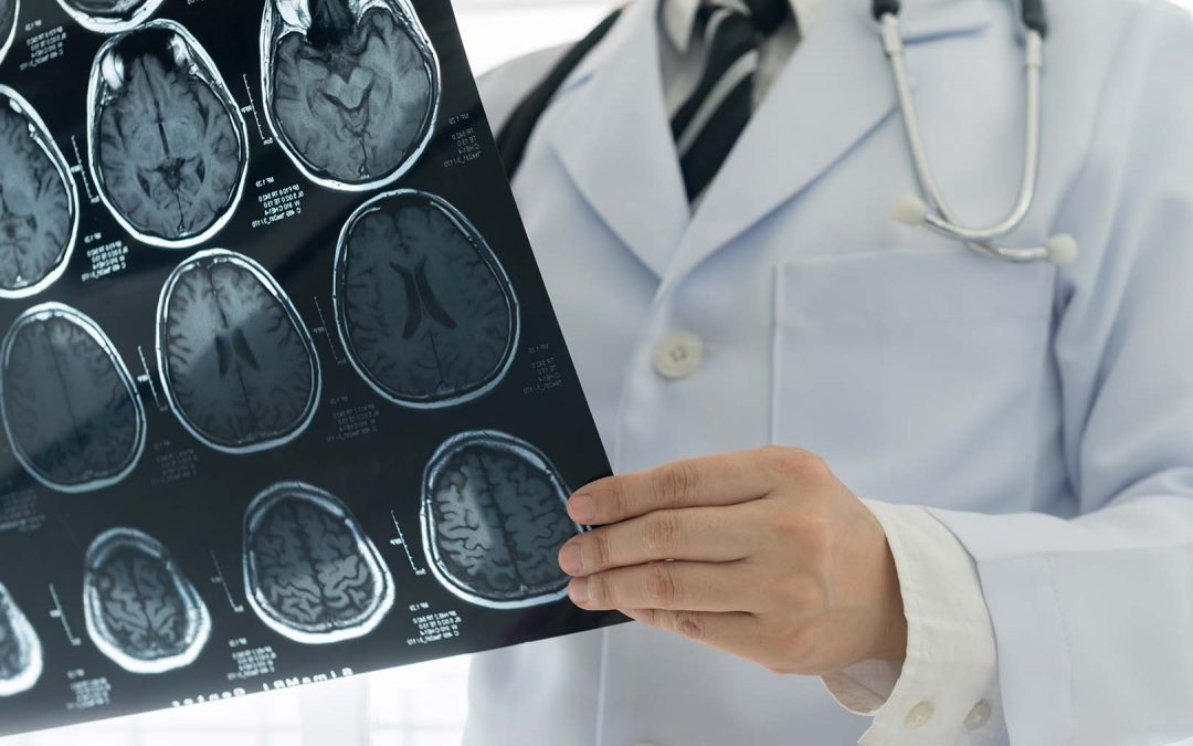 Kenali Gejala dan Penyebab Penyakit Stroke pada Orang Tua