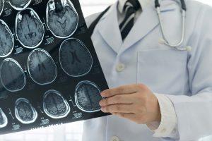 gejala-penyakit-stroke