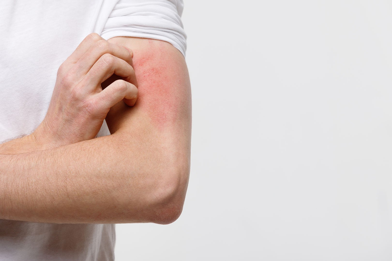 penyebab-alergi