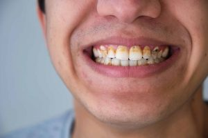 penyakit-periodontal
